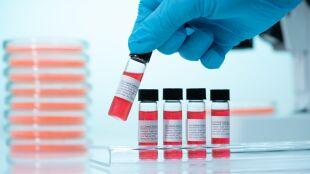 Potencjalne leki na COVID-19. Naukowcy wytypowali ich 21